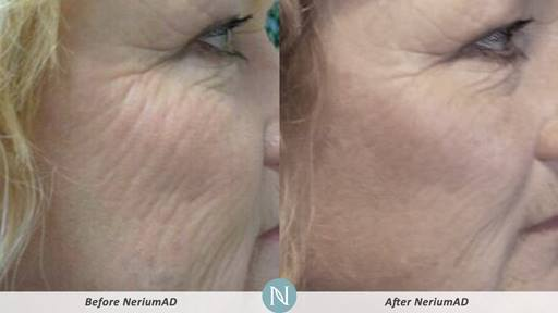 NeriumAD-Results-Aging-Skin-1