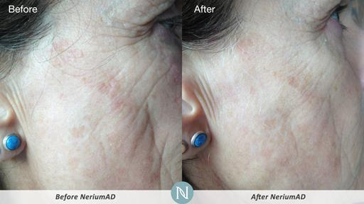 NeriumAD-Results-Aging-Skin-2