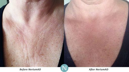 NeriumAD-Results-Chest-Wrinkles-2