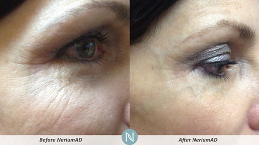 NeriumAD-Results-Eye-Lines-3