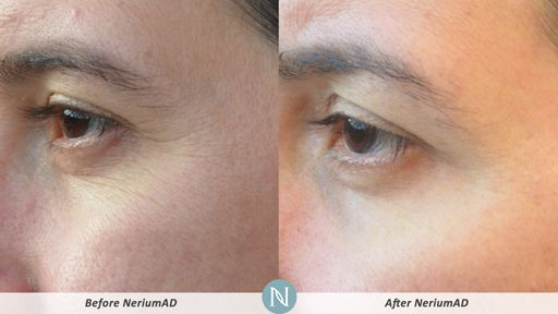 NeriumAD-Results-Eye-Lines-4