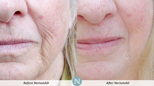 NeriumAD-Results-Face-Wrinkles-1