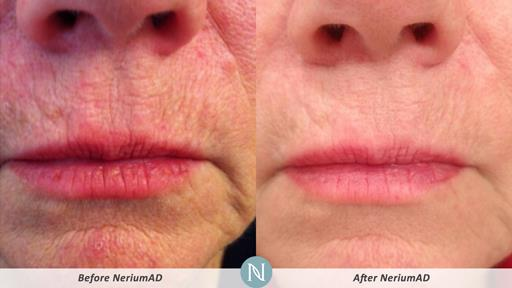 NeriumAD-Results-Fine-Lines-1