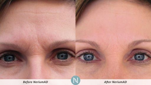 NeriumAD-Results-Forehead-Lines-1
