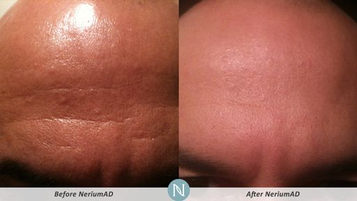 NeriumAD-Results-Forehead-Lines-3