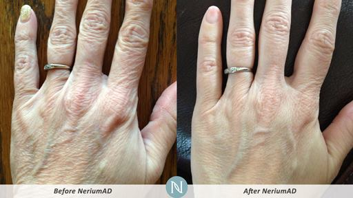 NeriumAD-Results-Hand-Wrinkles-1