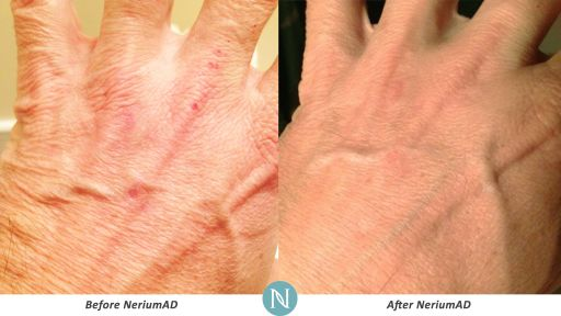 NeriumAD-Results-Hand-Wrinkles-2