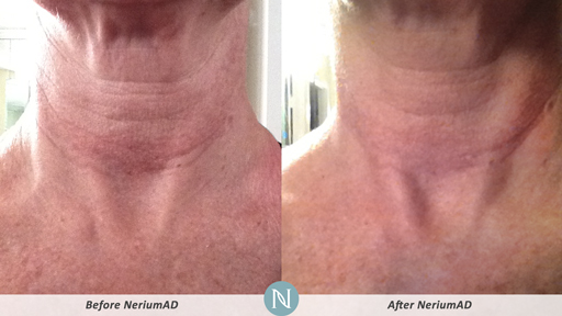 NeriumAD-Results-Neck-Wrinkles-1