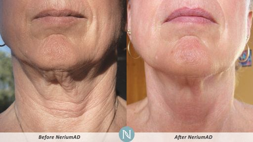 NeriumAD-Results-Neck-Wrinkles-2