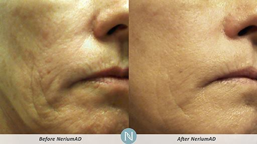 NeriumAD-Results-Skin-Texture-1