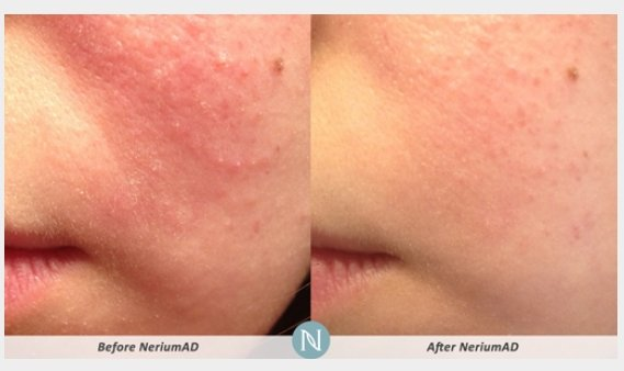 NeriumAD-Results-Skin-Texture-2