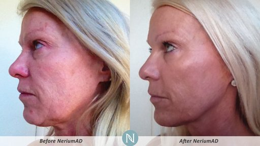 NeriumAD-Results-Skin-Texture-3