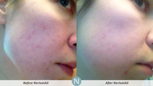 NeriumAD-Results-Skin-Texture-4
