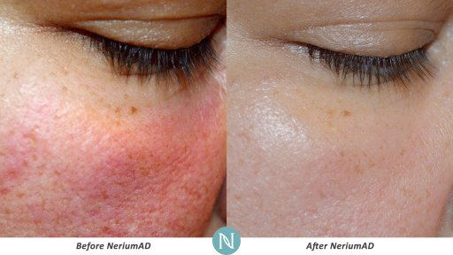NeriumAD-Results-Skin-Texture-6