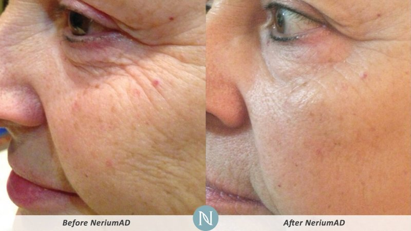 NeriumAD-Results-Wrinkles-2