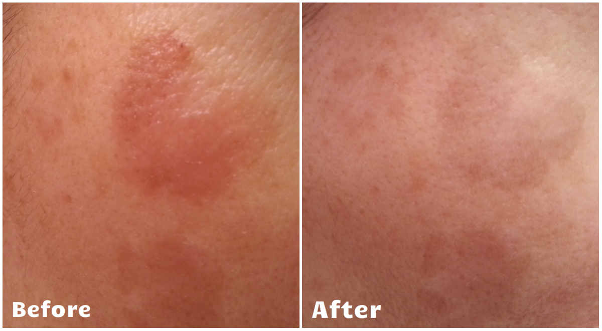 NeriumAD-Results-blemish-cheek