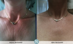 NeriumAD-Results-Chest-Wrinkles-1