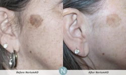 NeriumAD-Results-Discoloration