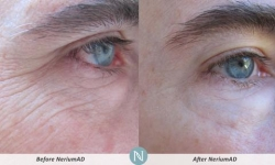NeriumAD-Results-Eye-Lines-2
