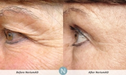 NeriumAD-Results-Eye-Lines-5
