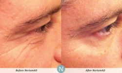 NeriumAD-Results-Eye-Lines-6