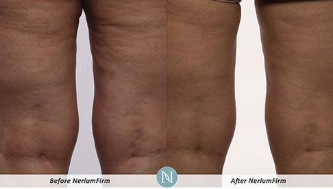 nerium-firm-results-1