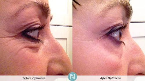 Optimera-Results-Eye-Lines-1