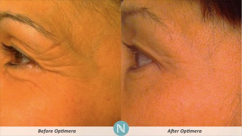 Optimera-Results-Eye-Lines-2