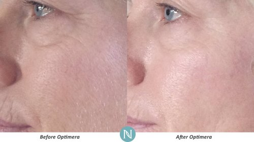 Optimera-Results-Eye-Lines-3